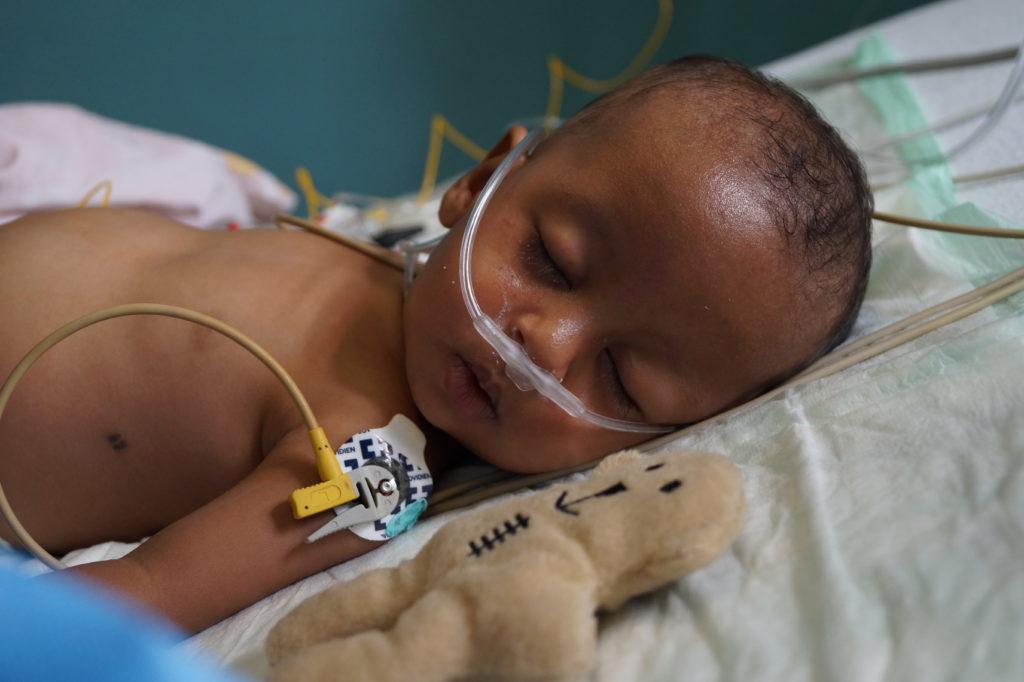 Säugling nach der Herz-OP