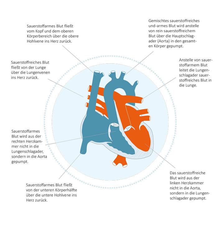 Transposition-der-großen-Arterien